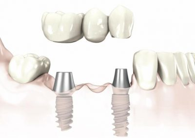 bridge-sur-implants